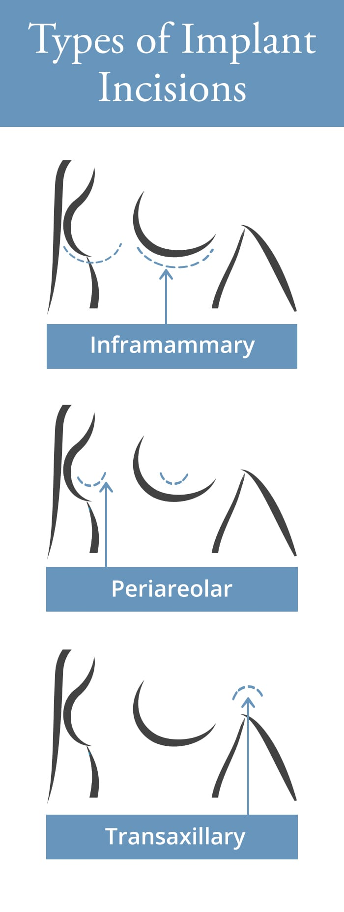 breast incision placement graphic