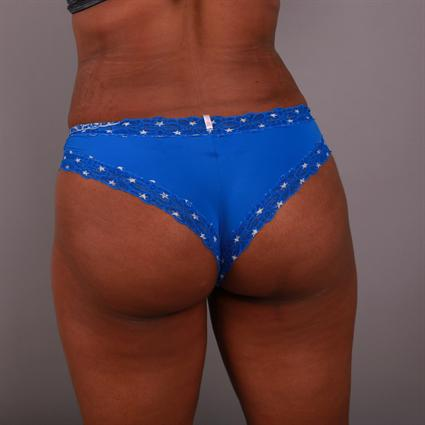 Non-Surgical Butt Lift in Atlanta | Y Plastic Surgery
